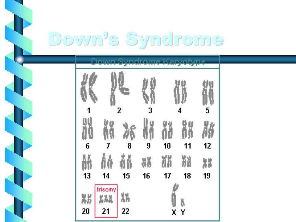 Edwards syndrome Edwards syndrome