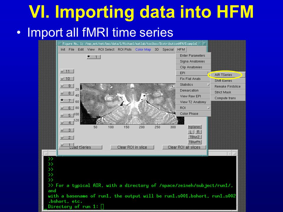 VI. Importing data into HFM Import all fMRI time series