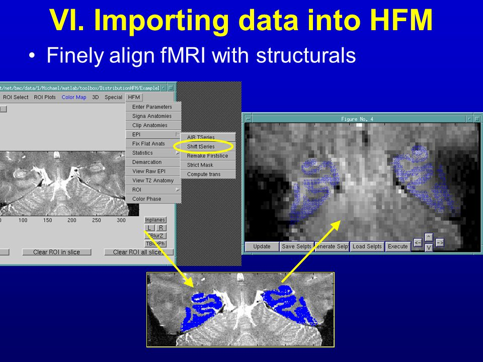 VI. Importing data into HFM Finely align fMRI with structurals