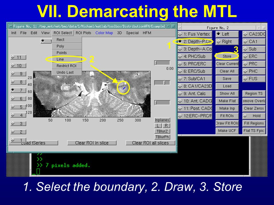 VII. Demarcating the MTL 1. Select the boundary, 2. Draw, 3. Store 1 2 3
