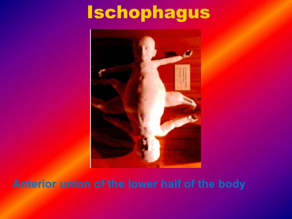Dicephalus This refers to one body with two heads.