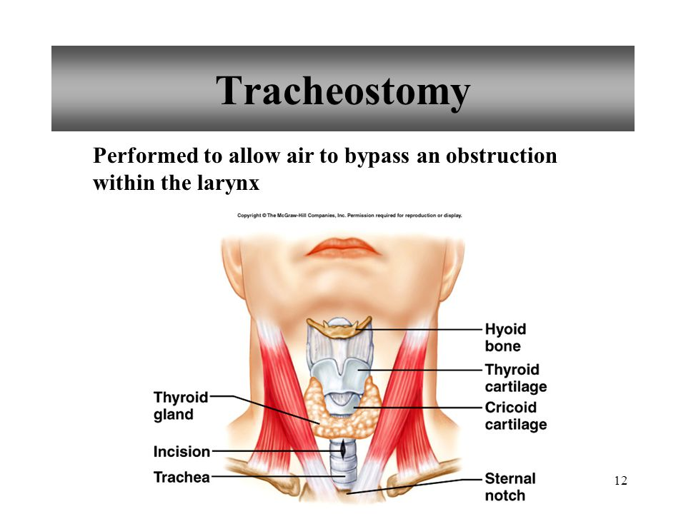12 Tracheostomy Performed to allow air to bypass an obstruction within the larynx