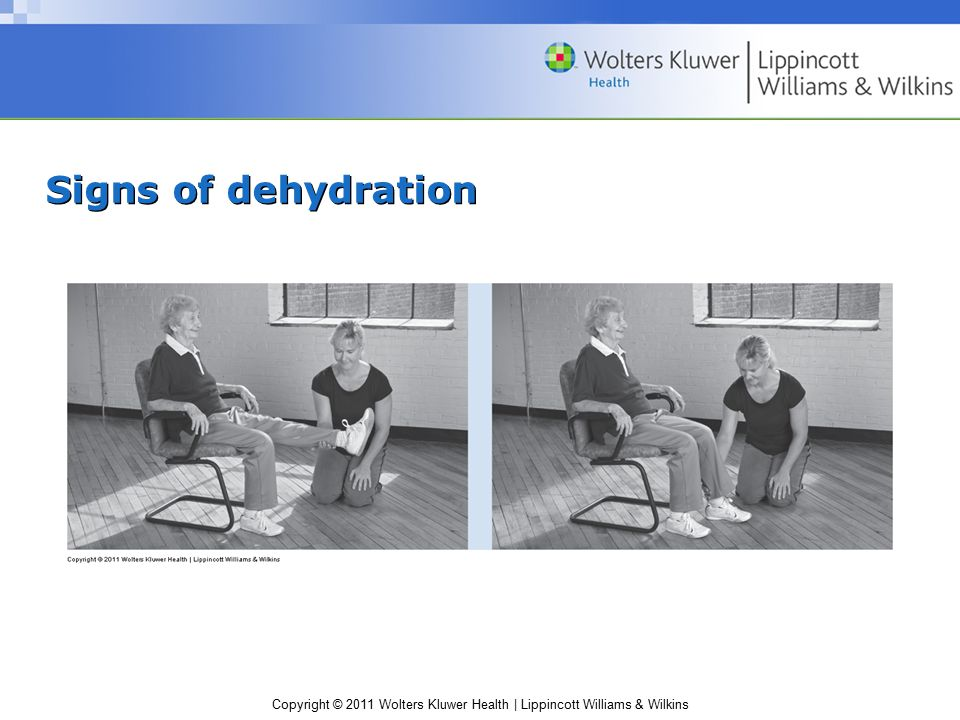 Copyright © 2011 Wolters Kluwer Health | Lippincott Williams & Wilkins Signs of dehydration