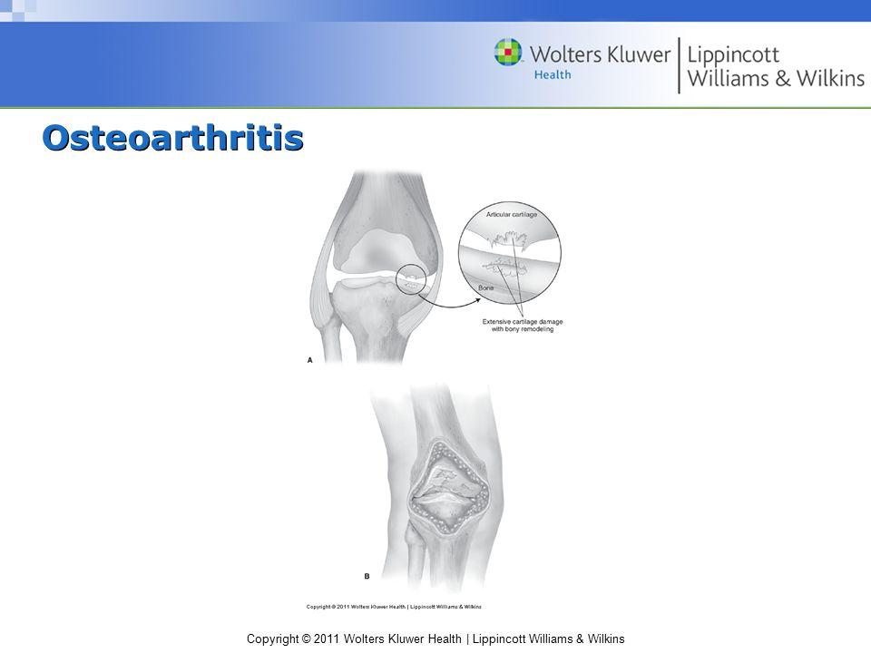 Copyright © 2011 Wolters Kluwer Health | Lippincott Williams & Wilkins Osteoarthritis
