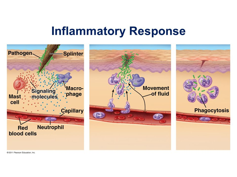 The next time the allergen enters the body, it binds to mast cell–associated IgE molecules Mast cells release histamine and other mediators that cause vascular changes leading to typical allergy symptoms An acute allergic response can lead to anaphylactic shock, a life-threatening reaction, within seconds of allergen exposure © 2011 Pearson Education, Inc.