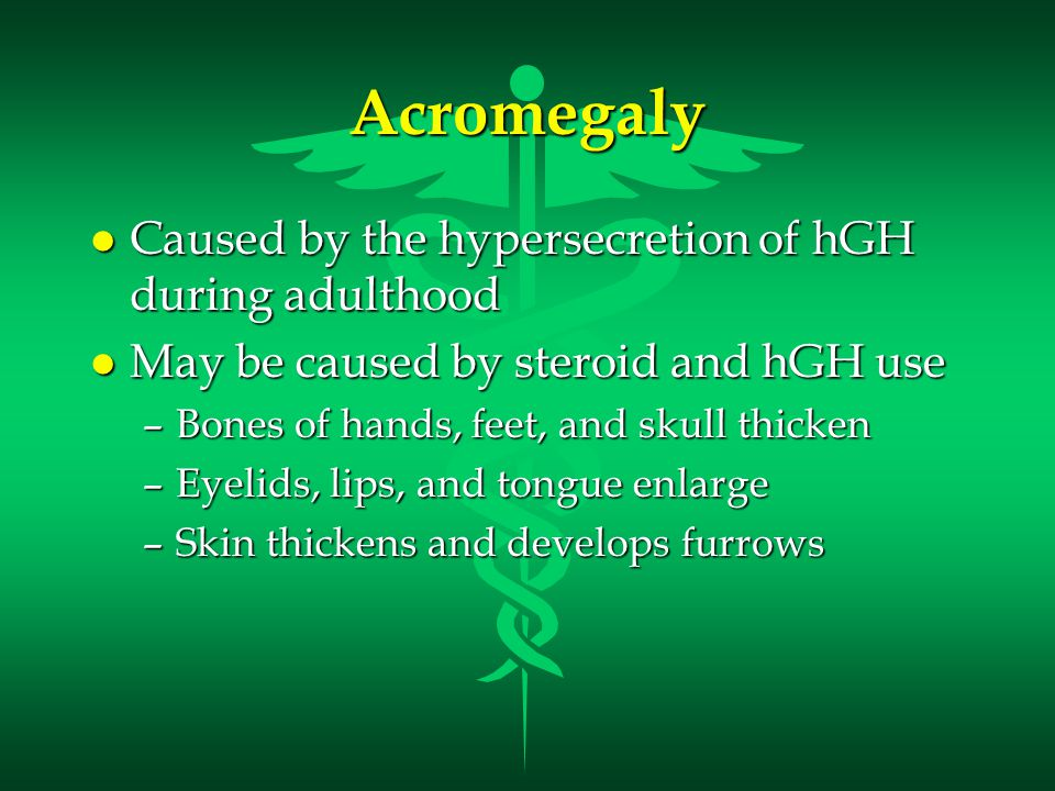 Acromegaly You Tube Video called Patient Speaking on World Rare Diseases Day 2010 found at http://www.youtube.com/watch?v=YBRCzPy2EwI