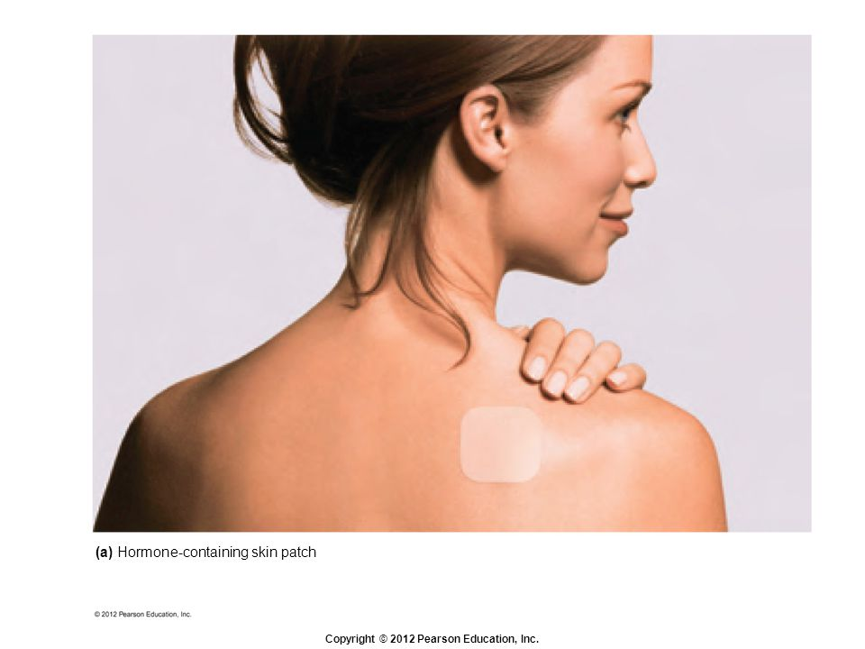 (a) Hormone-containing skin patch