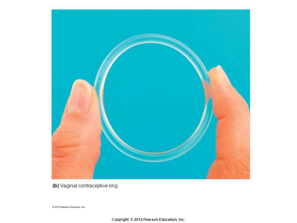 Copyright © 2012 Pearson Education, Inc. (b) Vaginal contraceptive ring