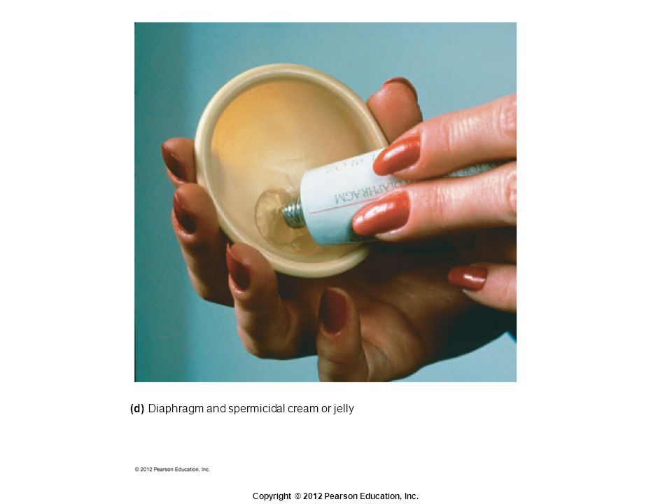 Copyright © 2012 Pearson Education, Inc. (d) Diaphragm and spermicidal cream or jelly