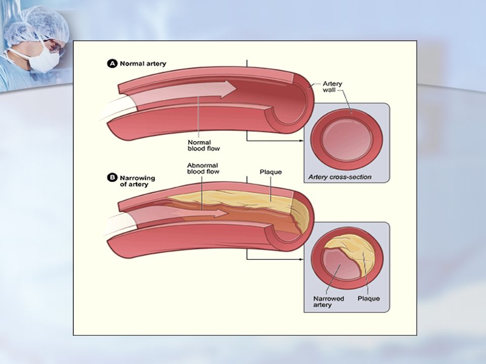 Plaque There are two types of plaque: Hard & Stable or Soft and Unstable There are two types of plaque: Hard & Stable or Soft and Unstable Hard plaque causes artery walls to thicken and harden.