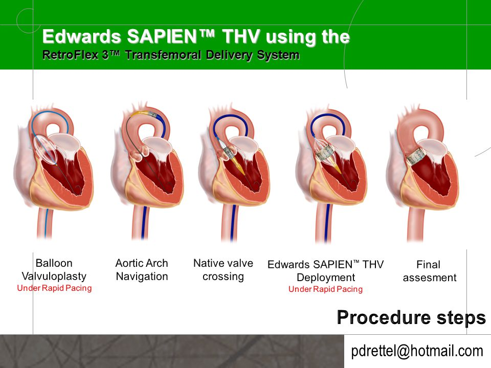 pdrettel@hotmail.com Edwards SAPIEN™ THV using the RetroFlex 3™ Transfemoral Delivery System