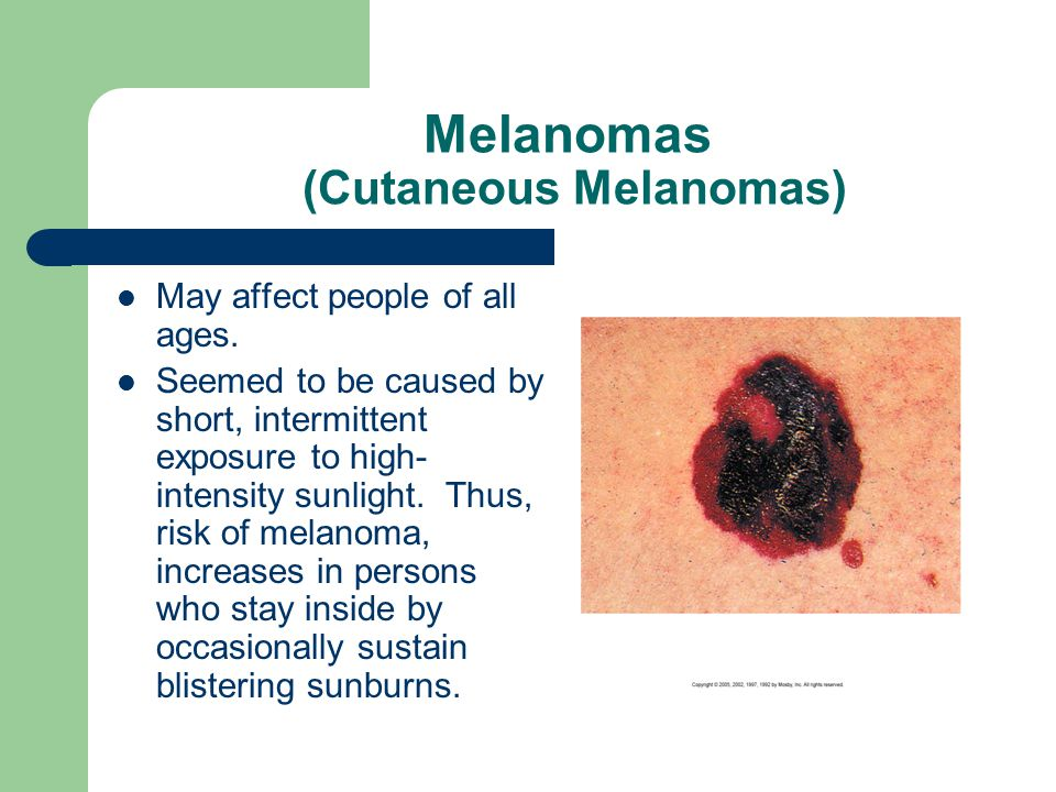 May affect people of all ages. Seemed to be caused by short, intermittent exposure to high- intensity sunlight. Thus, risk of melanoma, increases in p
