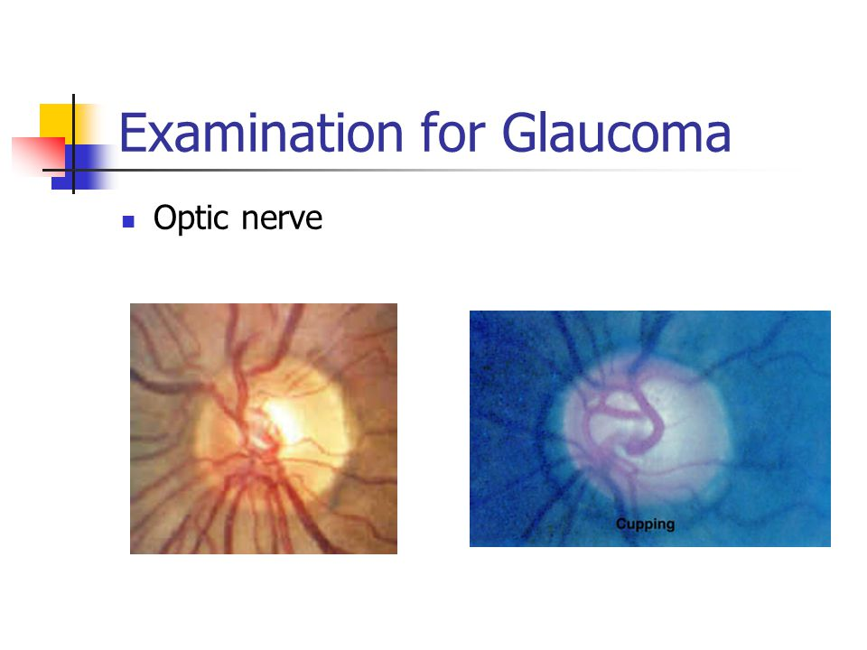Examination for Glaucoma Optic nerve