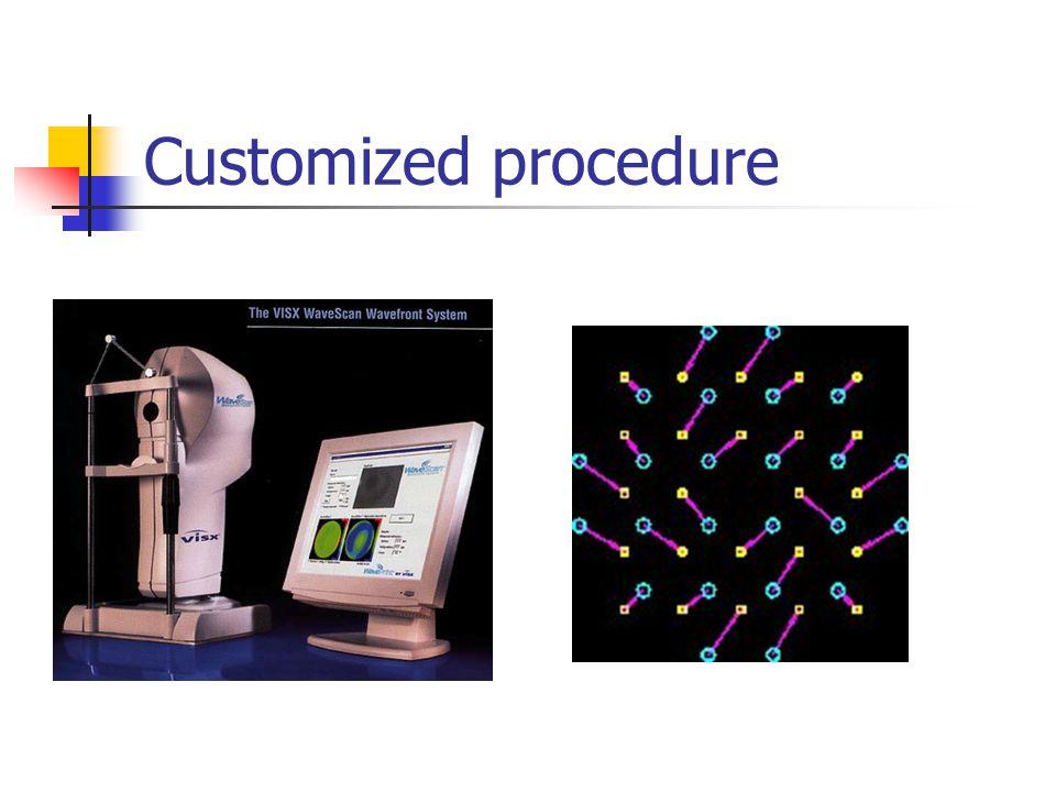 Customized procedure