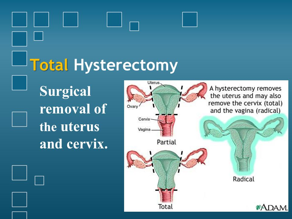 Total Total Hysterectomy Surgical removal of the uterus and cervix.