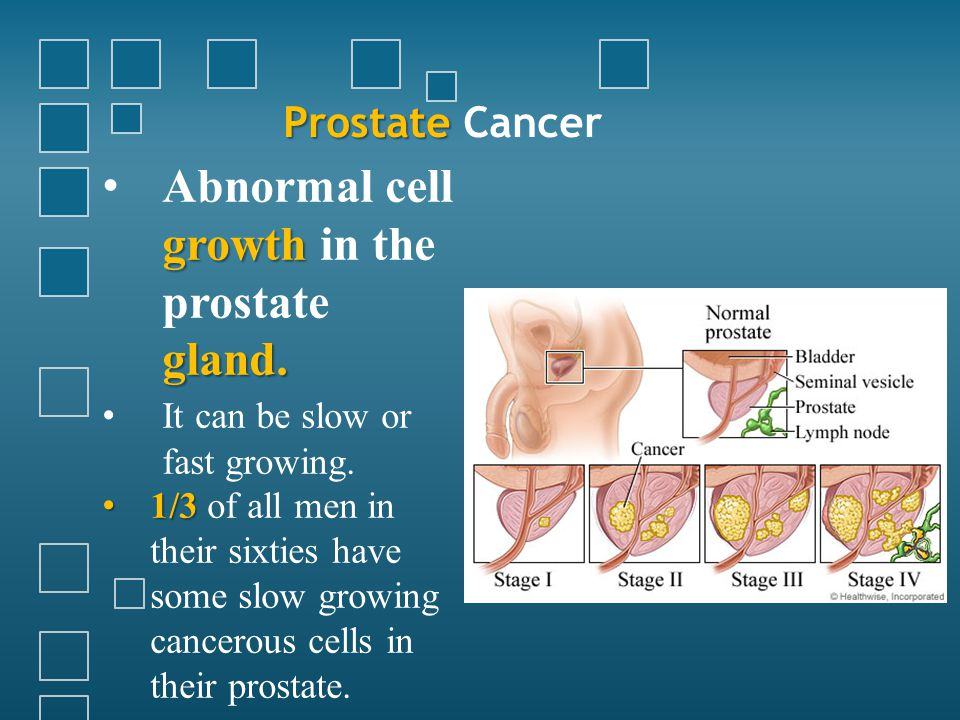 Prostate Prostate Cancer growth gland. Abnormal cell growth in the prostate gland. It can be slow or fast growing. 1/3 1/3 of all men in their sixties