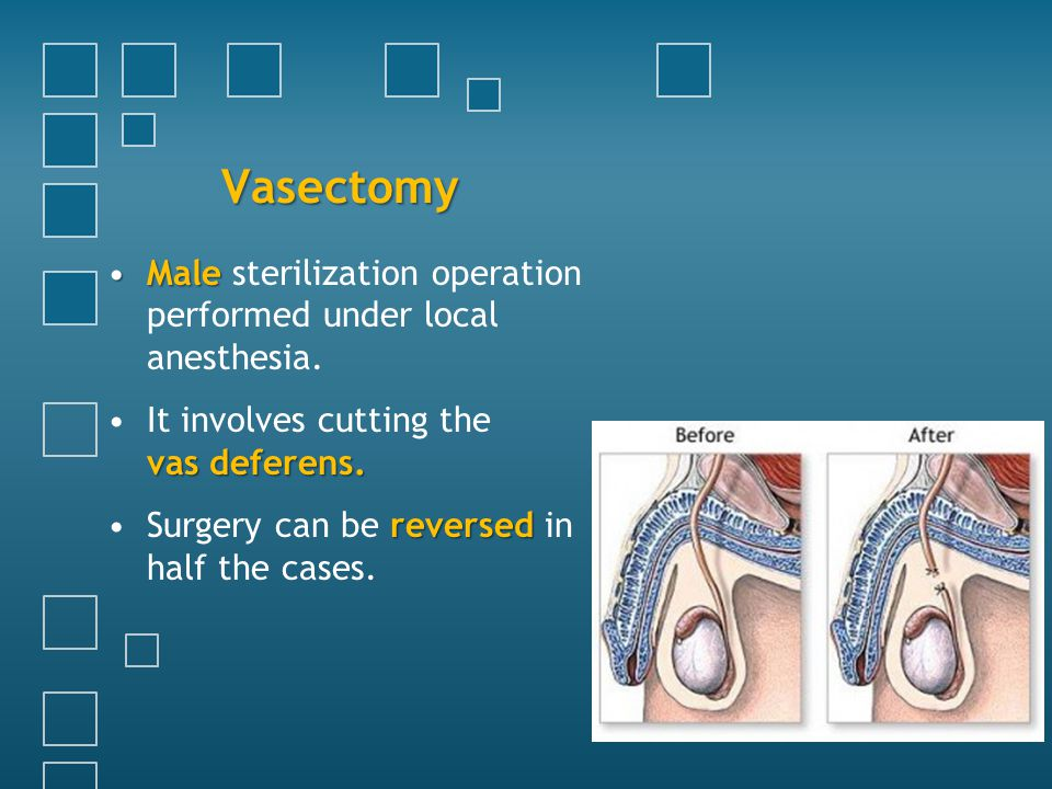 Vasectomy MaleMale sterilization operation performed under local anesthesia. vas deferens.It involves cutting the vas deferens. reversedSurgery can be