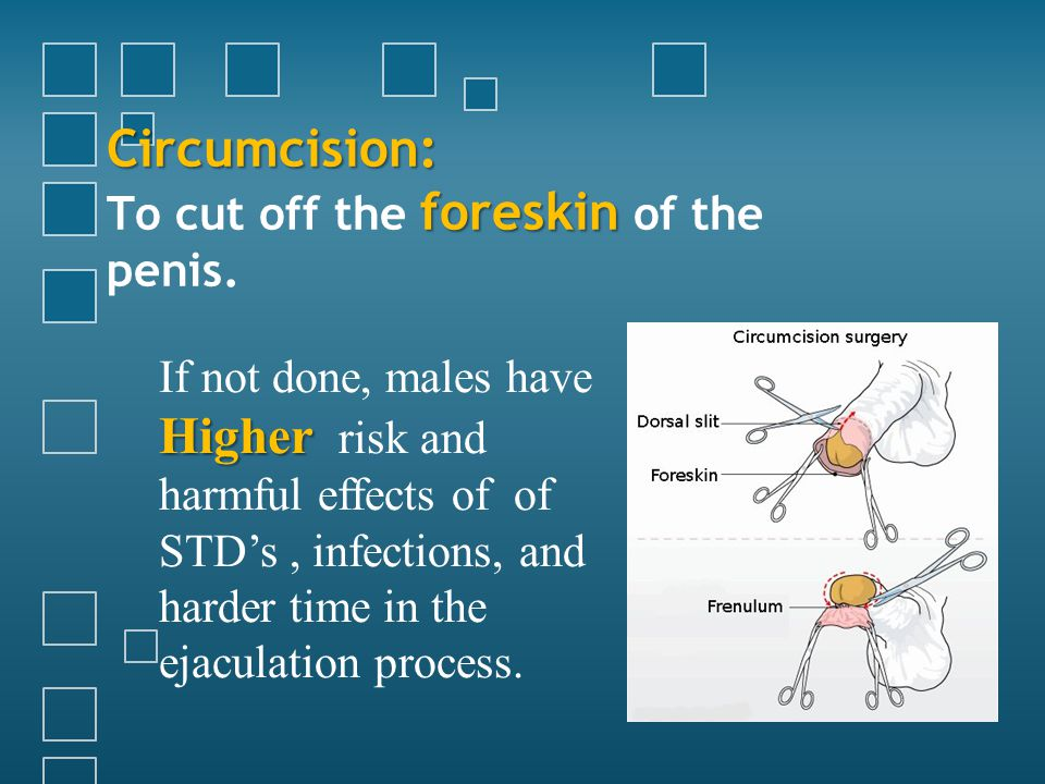 Circumcision: foreskin Circumcision: To cut off the foreskin of the penis.