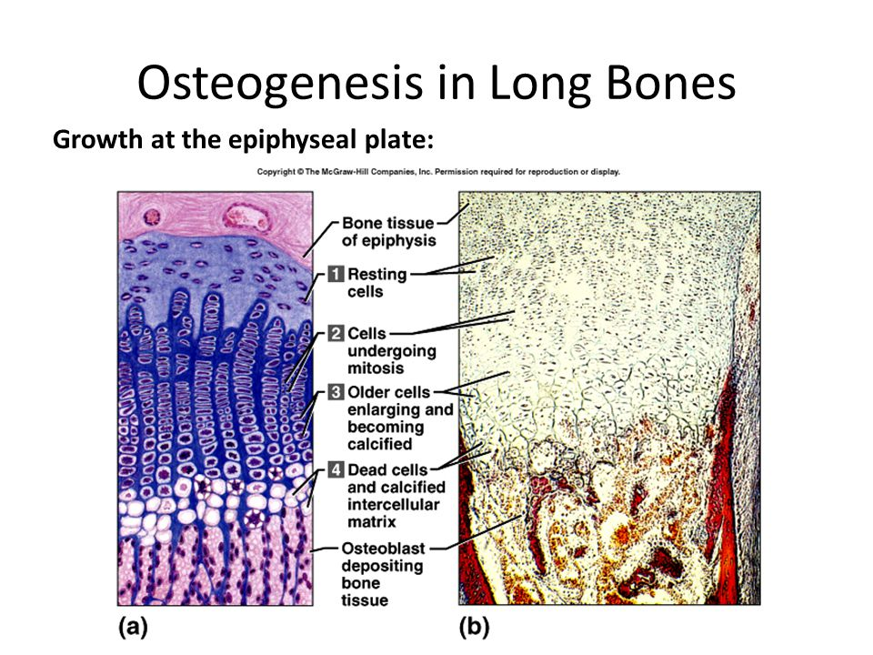 Osteogenesis in Long Bones Growth at the epiphyseal plate: