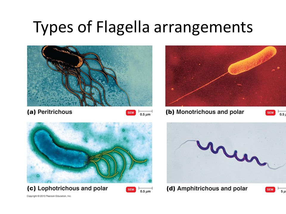 Types of Flagella arrangements