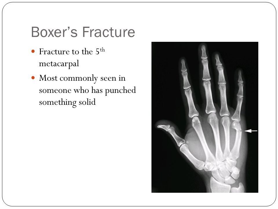 Boxer's Fracture Fracture to the 5 th metacarpal Most commonly seen in someone who has punched something solid