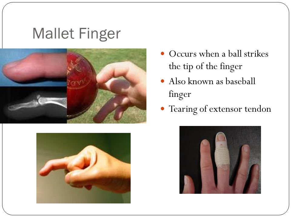 Mallet Finger Occurs when a ball strikes the tip of the finger Also known as baseball finger Tearing of extensor tendon