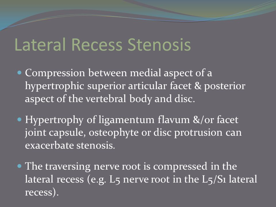 Lateral Recess Stenosis Compression between medial aspect of a hypertrophic superior articular facet & posterior aspect of the vertebral body and disc.
