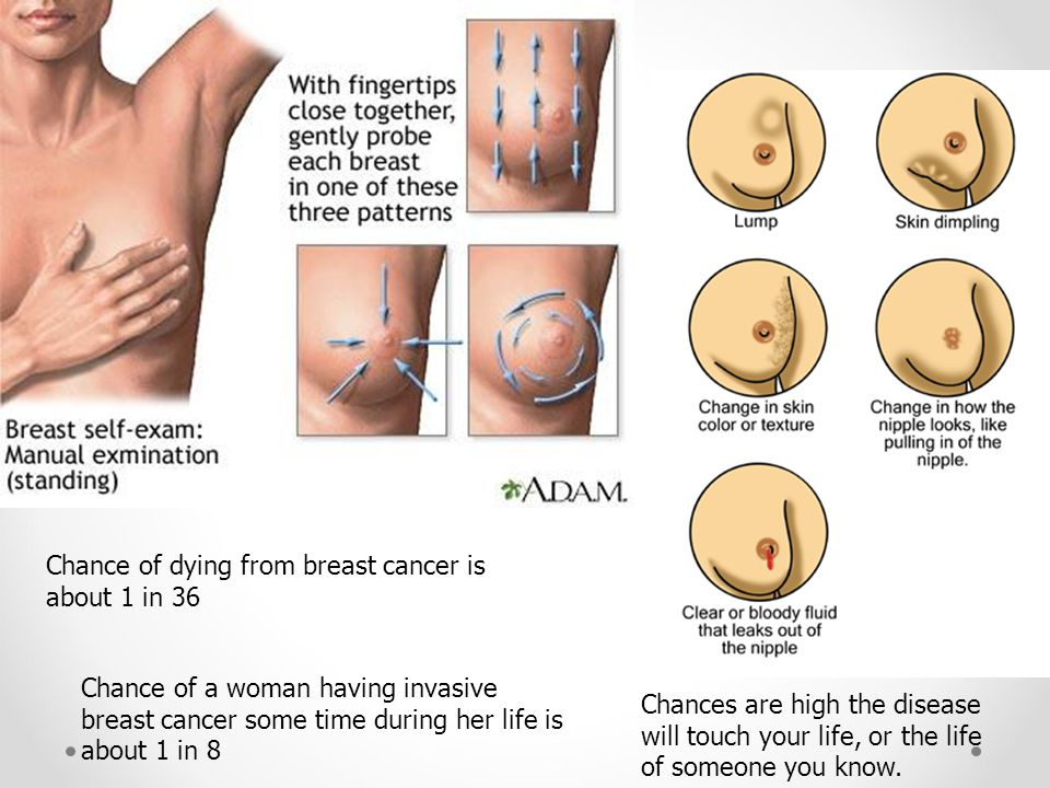 Chance of dying from breast cancer is about 1 in 36 Chance of a woman having invasive breast cancer some time during her life is about 1 in 8 Chances