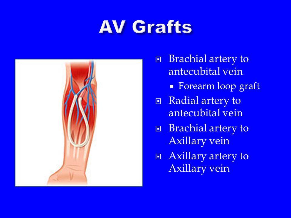  Brachial artery to antecubital vein  Forearm loop graft  Radial artery to antecubital vein  Brachial artery to Axillary vein  Axillary artery to Axillary vein