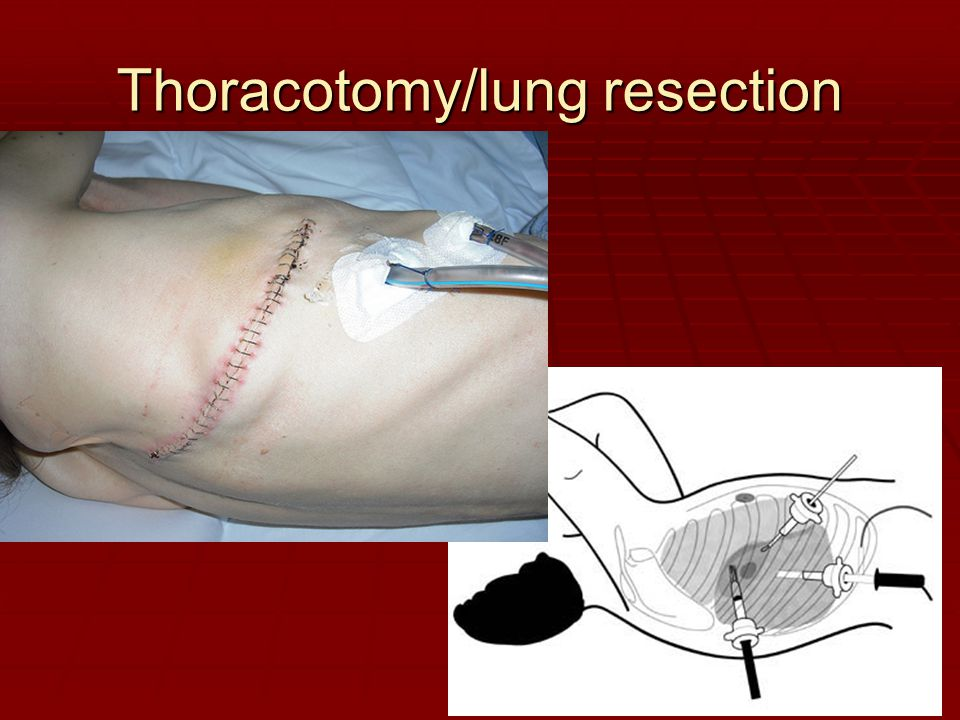 Thoracotomy/lung resection