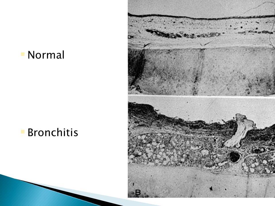  Normal  Bronchitis