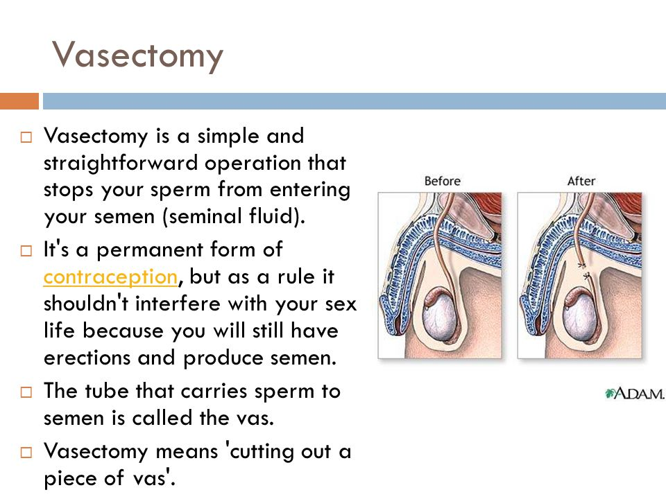 Vasectomy  Vasectomy is a simple and straightforward operation that stops your sperm from entering your semen (seminal fluid).