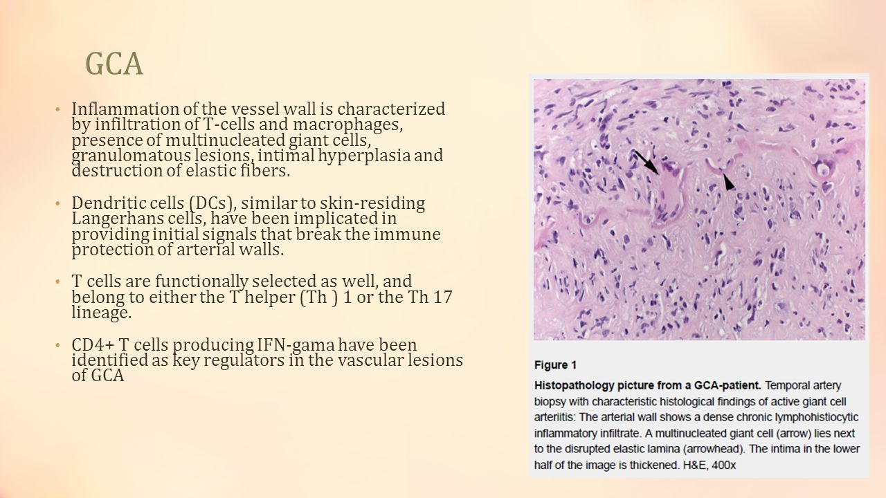 GCA why old age.Self tolerance is an active process within the immune system.