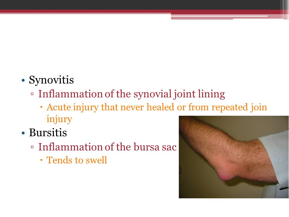 Synovitis ▫Inflammation of the synovial joint lining  Acute injury that never healed or from repeated join injury Bursitis ▫Inflammation of the bursa sac  Tends to swell