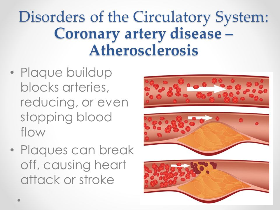 Disorders of the Circulatory System: Coronary artery disease – Atherosclerosis Plaque buildup blocks arteries, reducing, or even stopping blood flow P