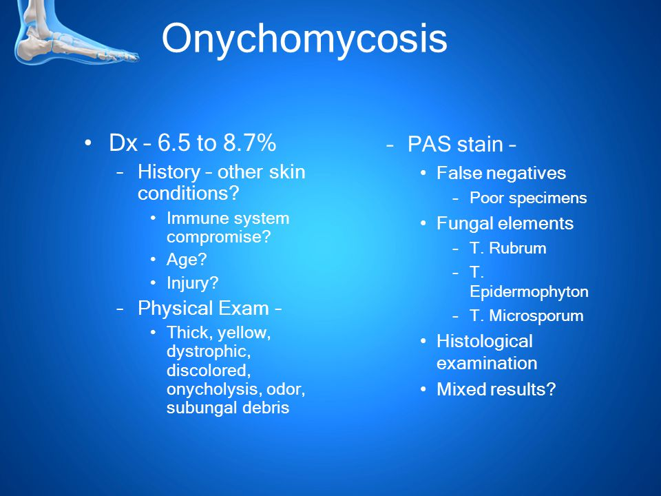 Onychomycosis Dx – 6.5 to 8.7% –History – other skin conditions.