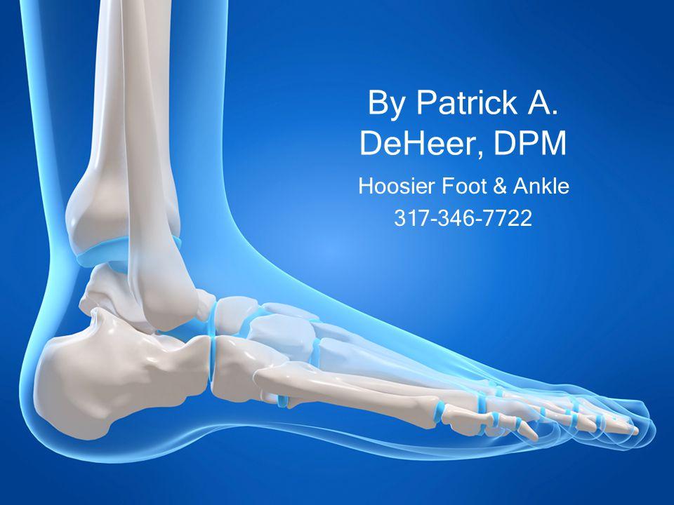 By Patrick A. DeHeer, DPM Hoosier Foot & Ankle 317-346-7722