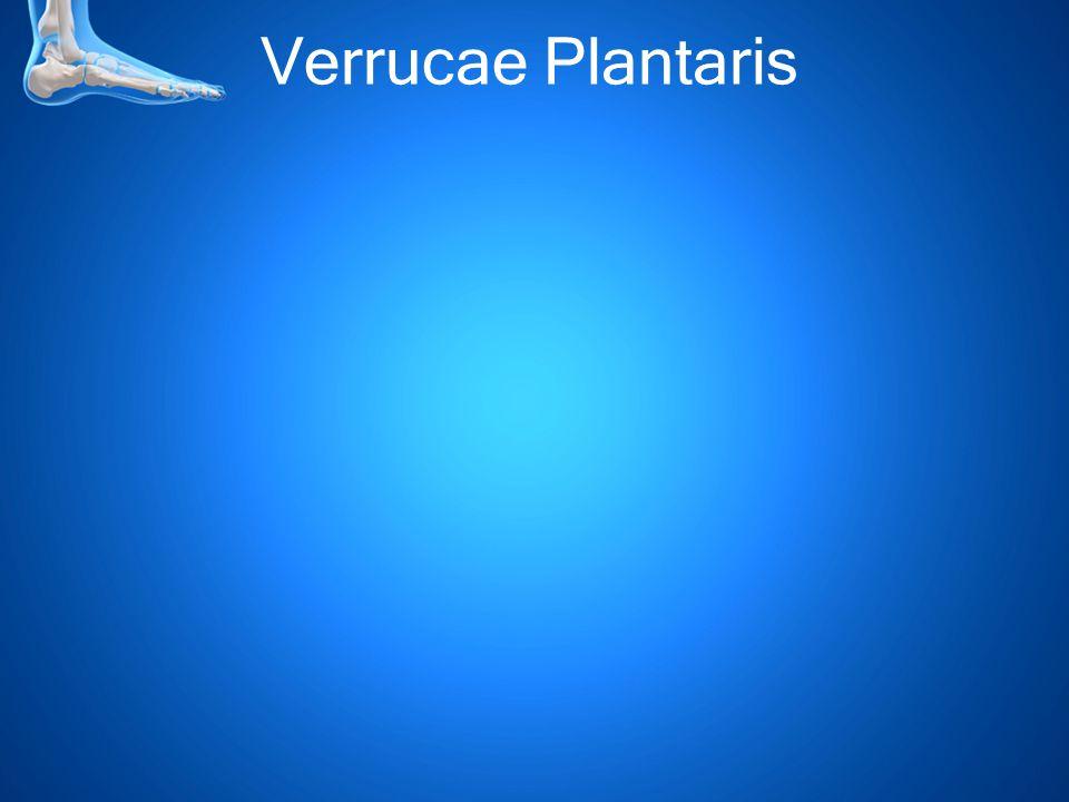 Verrucae Plantaris