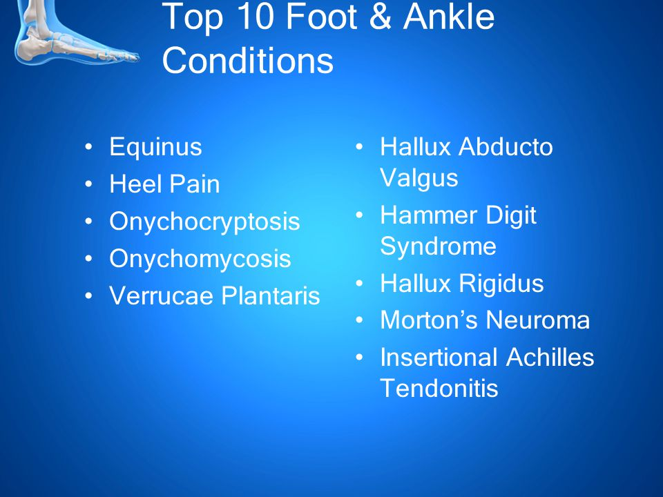 Top 10 Foot & Ankle Conditions Equinus Heel Pain Onychocryptosis Onychomycosis Verrucae Plantaris Hallux Abducto Valgus Hammer Digit Syndrome Hallux Rigidus Morton's Neuroma Insertional Achilles Tendonitis