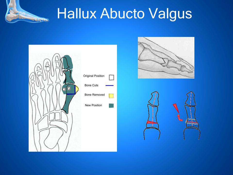 Hallux Abucto Valgus