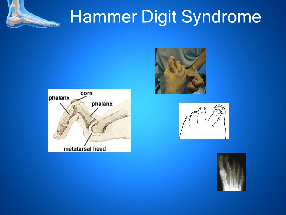 Hammer Digit Syndrome