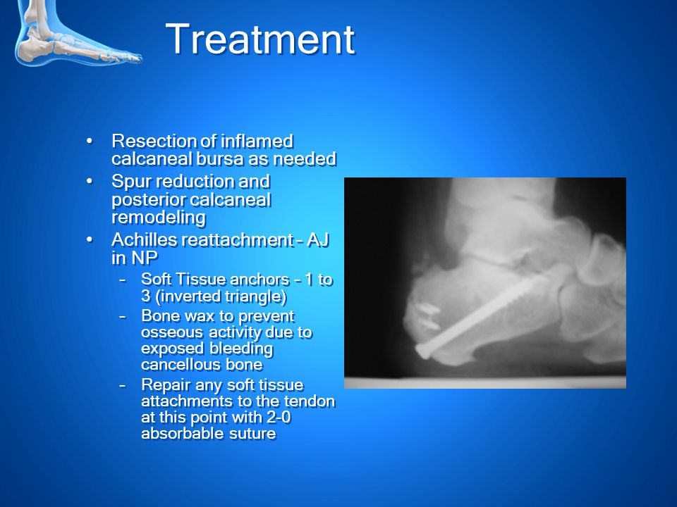 Treatment Resection of inflamed calcaneal bursa as needed Spur reduction and posterior calcaneal remodeling Achilles reattachment – AJ in NP –Soft Tissue anchors – 1 to 3 (inverted triangle) –Bone wax to prevent osseous activity due to exposed bleeding cancellous bone –Repair any soft tissue attachments to the tendon at this point with 2-0 absorbable suture Resection of inflamed calcaneal bursa as needed Spur reduction and posterior calcaneal remodeling Achilles reattachment – AJ in NP –Soft Tissue anchors – 1 to 3 (inverted triangle) –Bone wax to prevent osseous activity due to exposed bleeding cancellous bone –Repair any soft tissue attachments to the tendon at this point with 2-0 absorbable suture