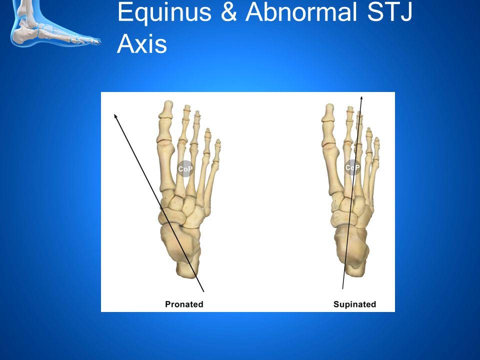 Equinus & Abnormal STJ Axis
