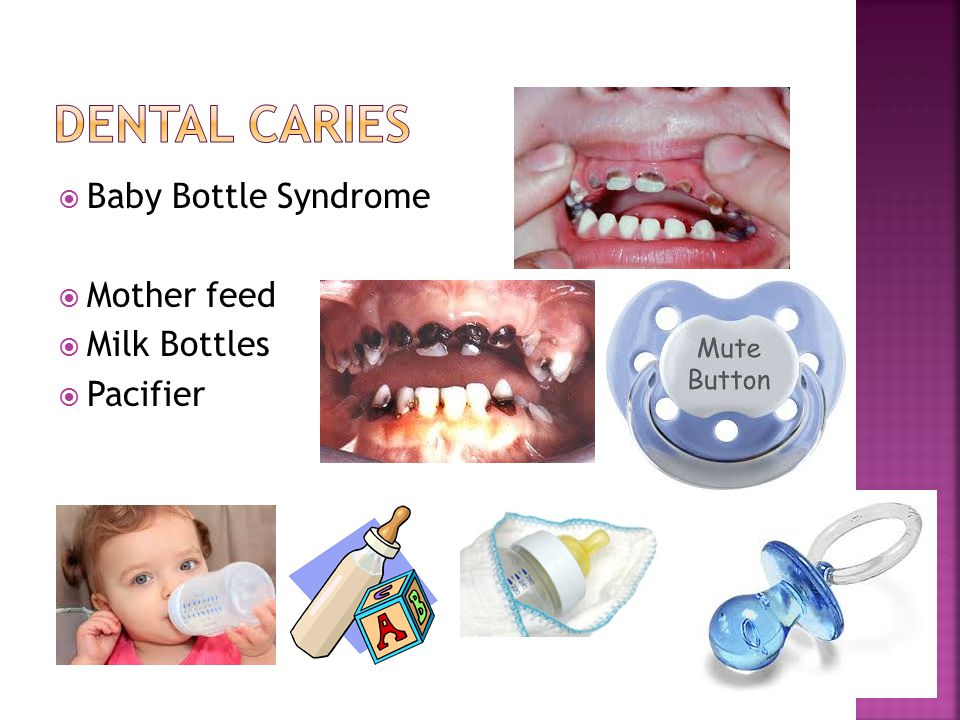  Baby Bottle Syndrome  Mother feed  Milk Bottles  Pacifier