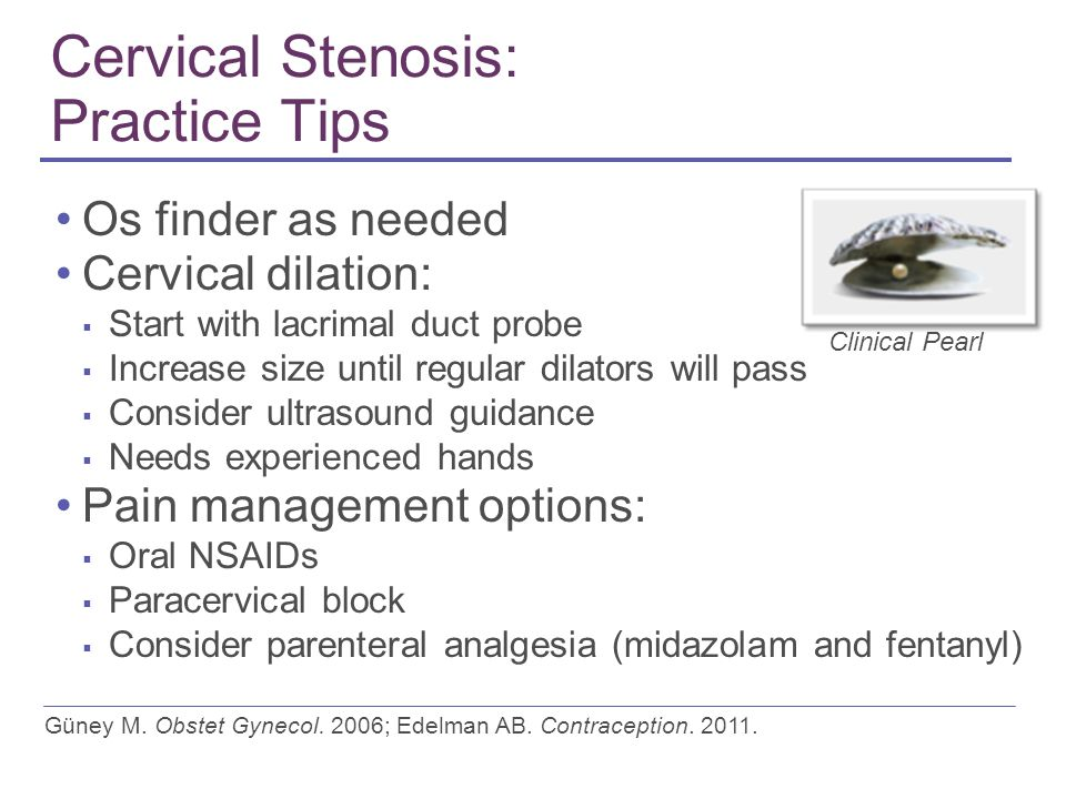 Cervical Stenosis: Practice Tips Os finder as needed Cervical dilation: ▪ Start with lacrimal duct probe ▪ Increase size until regular dilators will pass ▪ Consider ultrasound guidance ▪ Needs experienced hands Pain management options: ▪ Oral NSAIDs ▪ Paracervical block ▪ Consider parenteral analgesia (midazolam and fentanyl) Güney M.