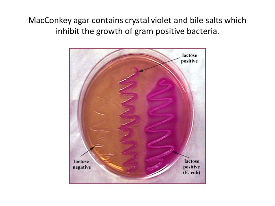 MacConkey agar contains crystal violet and bile salts which inhibit the growth of gram positive bacteria.