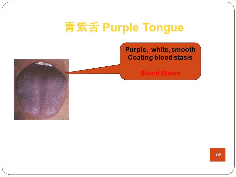 绛舌 Crimson Tongue Crimson, Moist, Little or No Coating Blood Stasis with heat Crimson, Cracked, Little or No Coating Yin-Deficient Heat