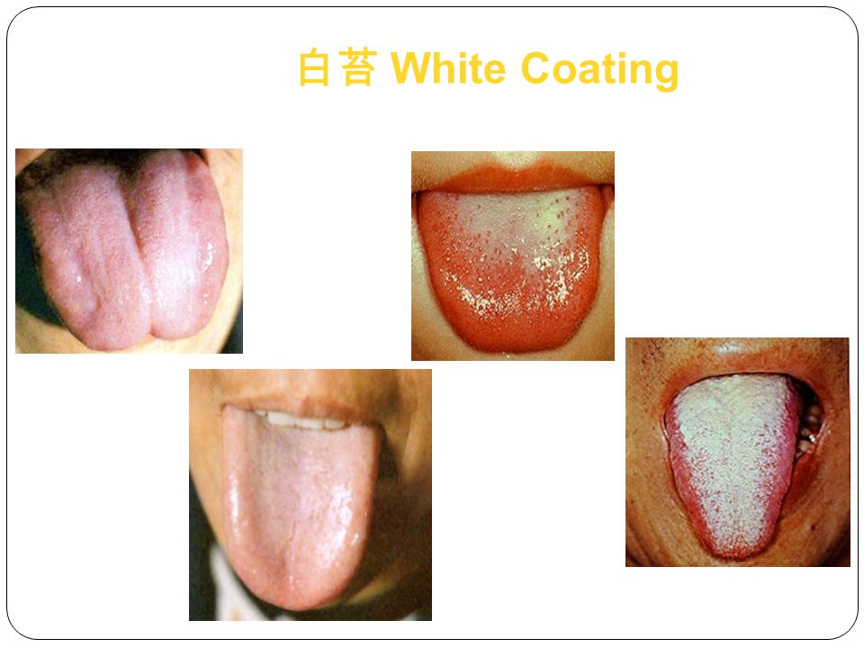 TextureSignificance Thickness Duration and Severity of Syndrome Moistness Water Retention and Quantity Rotten Wetness, Indigestion, Excess Heat Greasy Wetness, Indigestion Exfoliation Weak Stomach Qi, Depleted Yin Significance of Coating Texture