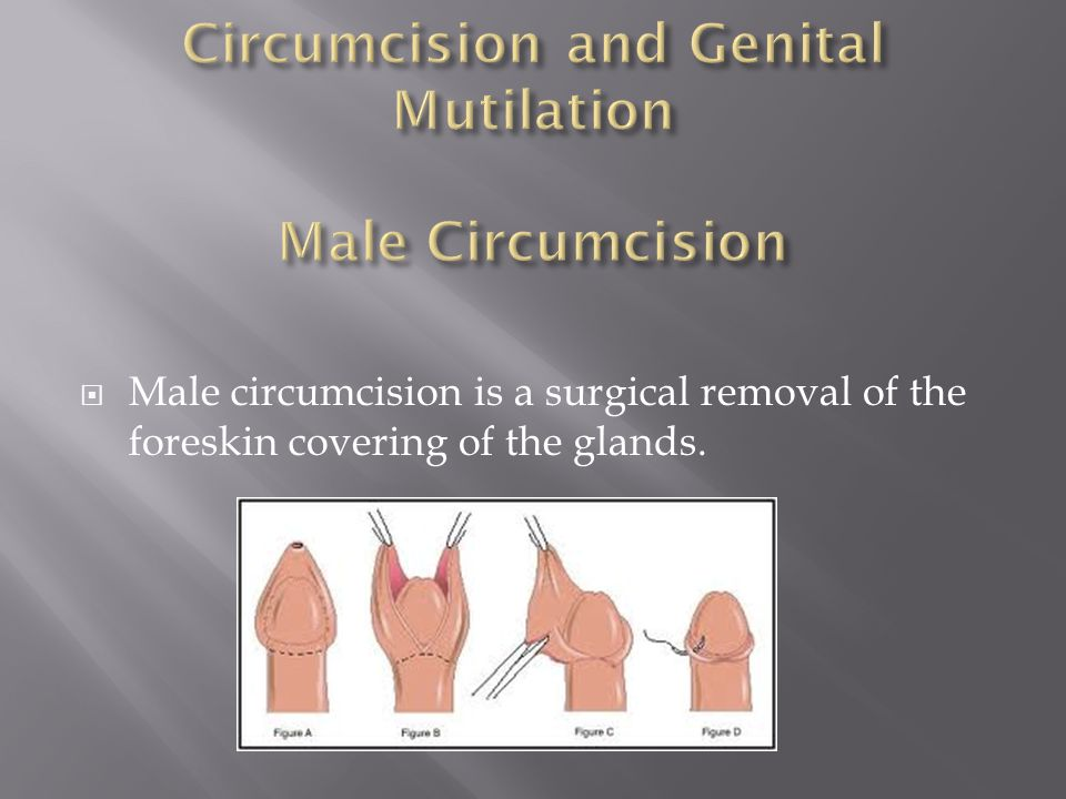  Male circumcision is a surgical removal of the foreskin covering of the glands.