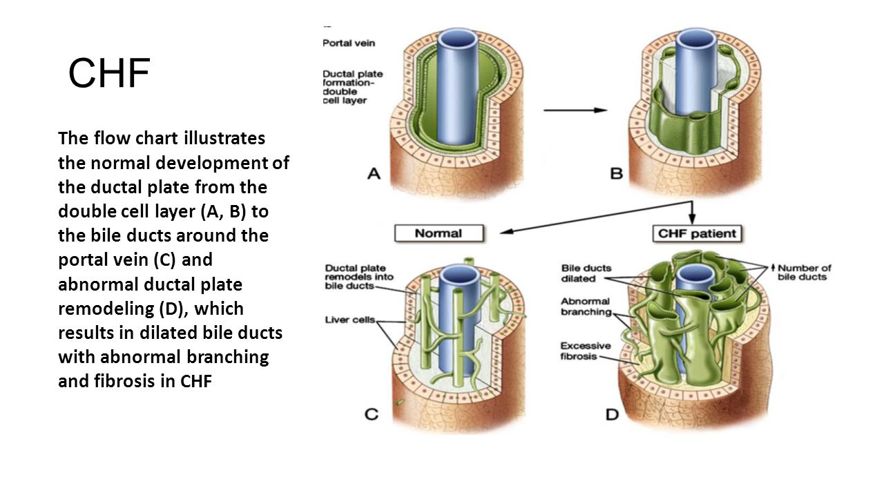 CHF The flow chart illustrates the normal development of the ductal plate from the double cell layer (A, B) to the bile ducts around the portal vein (C) and abnormal ductal plate remodeling (D), which results in dilated bile ducts with abnormal branching and fibrosis in CHF